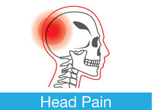 Head pain outline Stock Photography
