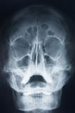 Head x-ray. Ghost like x-ray skull stock image