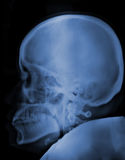 Head x-ray. Sidehead and skull  xray picture Stock Image
