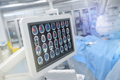 Head scan on the monitor in operating theatre.  stock photography