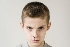 Head shot of child with bloody nose and gray shirt. Head shot of male child with short brown hair and trickle of blood streaming from his nose wearing grey shirt Royalty Free Stock Photo