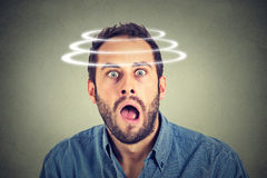 Head is spinning. Surprise astonished man. Stock Photo
