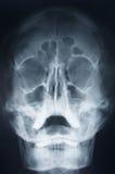 Head x-ray Stock Image