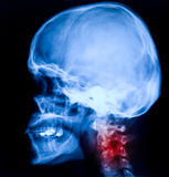 Head xray. Blue image of head xray royalty free stock images