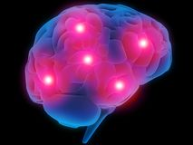 Headache. 3d rendered illustration of a human brain with pain Royalty Free Stock Images