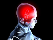 Headache - Anatomy Royalty Free Stock Images