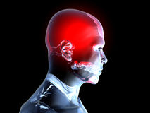Headache - Anatomy Stock Photo