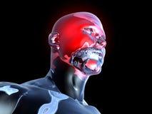 Headache - Anatomy Royalty Free Stock Image