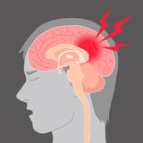 Headache, cerebral hemorrhage, brain stroke, image illustration Stock Images