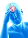 Headache/megrim Royalty Free Stock Photography