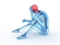 Headache/migraine Stock Photos
