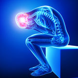 Headache / migraine royalty free illustration