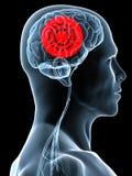 Headache / migraine Stock Images