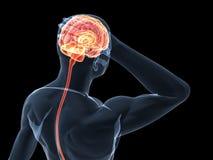 Headache/migraine illustration Royalty Free Stock Photo