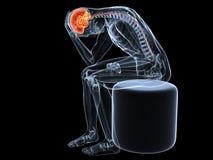 Headache/migraine illustration Stock Images