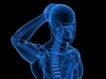 Headache/migraine illustration Stock Photos