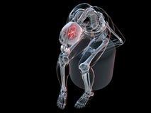 Headache/migraine illustration Stock Photography