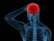 Headache/migraine illustration Stock Image