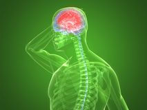 Headache/migraine illustration Stock Photo