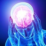Headache / migraine of male vector illustration