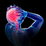 Headache/ migraine Stock Photo
