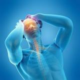 Headache/migrena ilustracja wektor