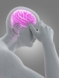 Headache/migrim Stock Images