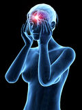 Headache/migrim Royalty Free Stock Photo