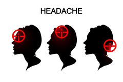 Headaches in women. migraine. anesthesia. Royalty Free Stock Photography