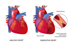 Healhty和不健康的心脏 库存例证