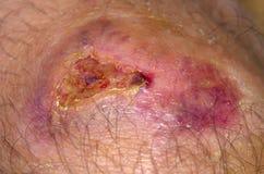 Healing wound Stock Image