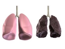 Health and bad lungss Stock Image