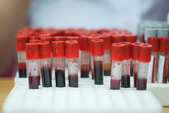 Health Check annual. Blood samples for the annual health check Royalty Free Stock Photography