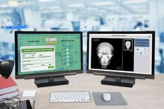 Health information and patient x-ray show on two computer monito. Rs on doctor desk with blue background of hospital office Royalty Free Stock Photo