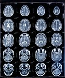 Health medical mri Stock Photography