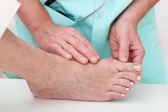 Health problems - Hallux. Nurse checking problems with foot - hallux, closeup Stock Image