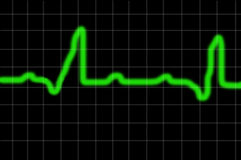 Health report. Heart monitor signal