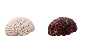 Healthy brain and disease brain on white isolate. Autopsy medical concept. Cancer and smoking problem. Healthy brain and disease brain on white isolate. Autopsy stock image