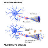 Healthy cell and neurons with Alzheimer`s disease. Tau hypothesi. Alzheimer`s disease is the change in tau protein that results in the breakdown of microtubules stock illustration
