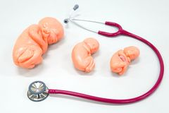 Human fetus model with stethoscope. Healthy concept : Human fetus model with stethoscope Stock Photography