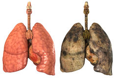 Lungs of a smoker. And healthy lung on white