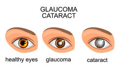 Healthy eyes, glaucoma, cataracts Stock Photography