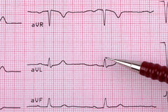 Healthy Heart cardiogram Stock Photography