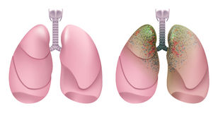 Healthy human lungs. Respiratory system. Lung, larynx and trachea of healthy person. Respiratory system smoker. Lung cancer Royalty Free Stock Image