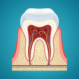Healthy human tooth in cutaway. Healthy human tooth in cutaway on blue background Stock Photo
