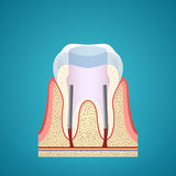 Healthy human tooth in cutaway Royalty Free Stock Photography