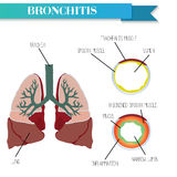 Healthy and inflamed bronchus. Chronic Bronchitis. Stock Photography