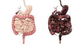 Healthy intestines and disease intestines on white isolate. Autopsy medical concept. Cancer and smoking problem. Healthy intestines and disease intestines on stock illustration