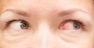 Healthy and irritated eye Stock Photography
