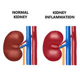 Healthy kidney and kidney infection. Stock Photos